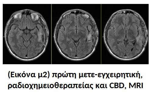 Κλινικά Αποτελέσματα : Ραδιοχημειοθεραπεία μαζί με Κανναβιδιόλη (CBD) 1